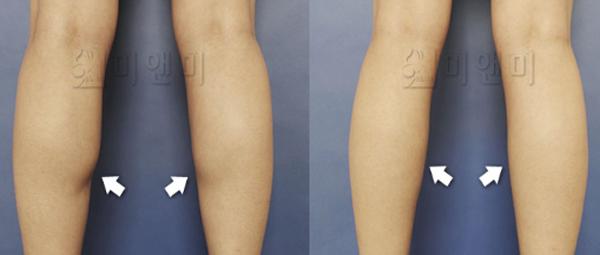 쫑알주사 = 근육축소 + 지방감소